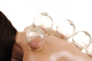 Fire cupping used to increase blood flow, release tight tissue and circulate vital energy