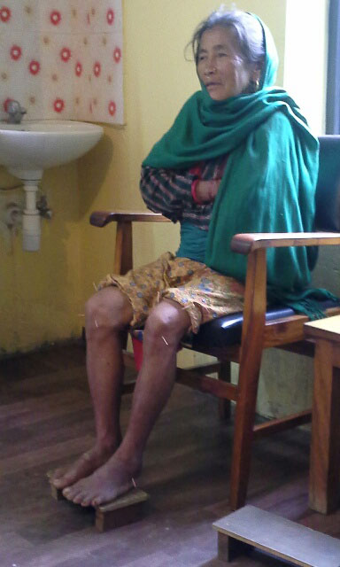 Local villager receiving acupuncture for knee pain