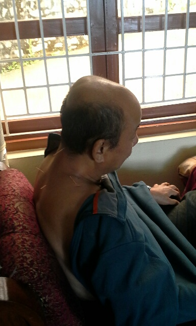 nepal-acupunture-man-back2