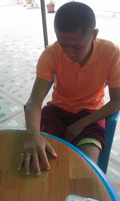 nepal-acupunture-man-hands