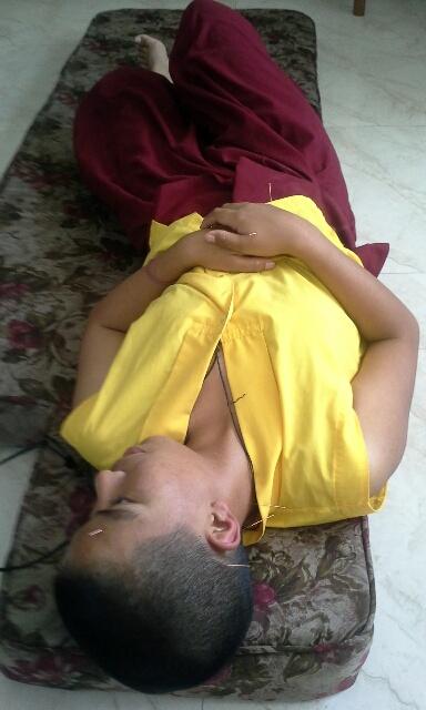 nepal-acupunture-nuns-4