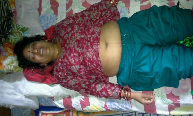 nepal-acupunture-woman
