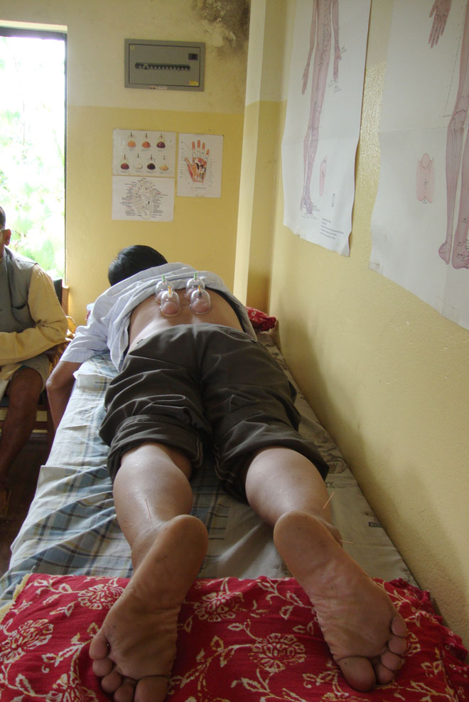 Patient receiving acupuncture